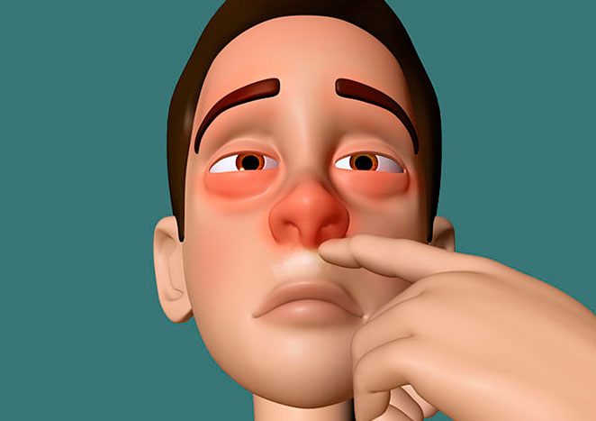 How To Get Rid Of Runny Nose 2 together with Miriam Loughrea Co Galway in addition Spring Allergies Vocabulary further Recognize The Differences Between The Symptoms Of Rhinitis And Sinusitis moreover Chill 20clipart 20feeling 20cold. on stuffy nose cartoon